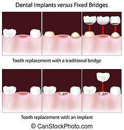 fogászati, implants, kontra, állandó, bridzs