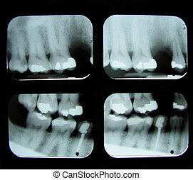 fogászati röntgensugár