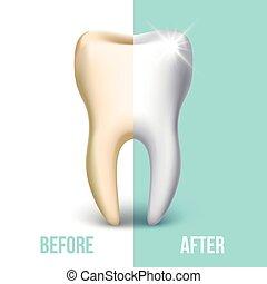 folheado, conceito, dental, vetorial, whitening, dentes