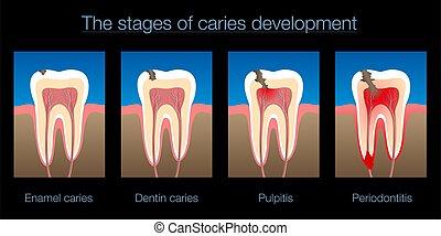 fondo negro, diente, desarrollo, caries, decaimiento, etapas