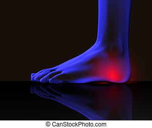 Foot and pain - X ray image of foot with pain