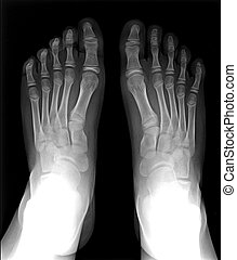 Foot fingers exposed on x-ray black and white film, MRI -...