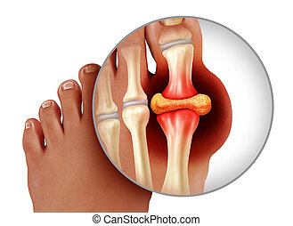 Foot Gout Anatomy