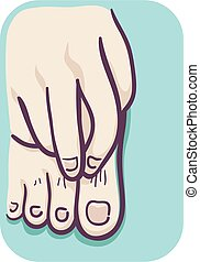 Foot Itchy Illustration - Illustration of a Hand Scratching...