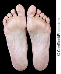 foot of an woman with calluses - The underside of the foot...
