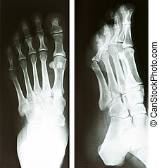 foot radiography - two x-ray of a human foot, heath and...
