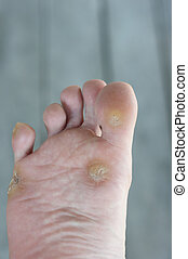 foot warts, corn
