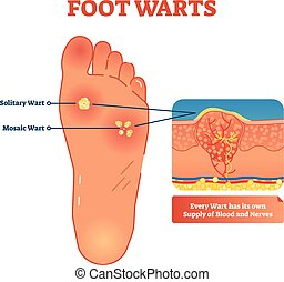 Foot warts vector illustration. Medical scheme with solitary...