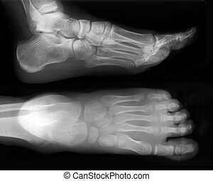 Foot fingers exposed on x-ray black and white film