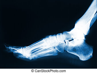 foot x-ray - x-ray image of human foot
