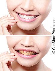 foran, kvinde, whitening, efter, tænder