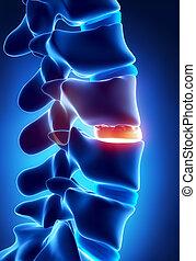 formación, disco, osteophyte, radiografía, degenarated