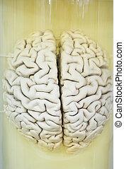 formalin, cérebro, closeup, solução, human
