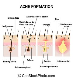 Formation of acne - Illustration of acne formation on the...