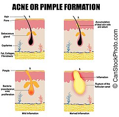 Formation of skin acne or pimple (for basic medical ...