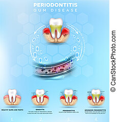 formation, periodontitis, complications, affiche
