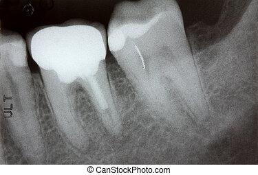 foto, closeup, raio x, dentes