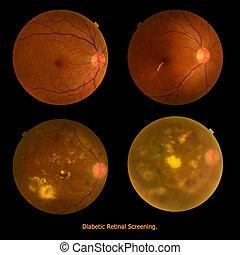 foto, médico, (eye, retinal, investigación, screen),...