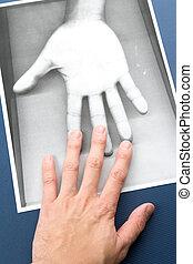 fotokopie, van, hand