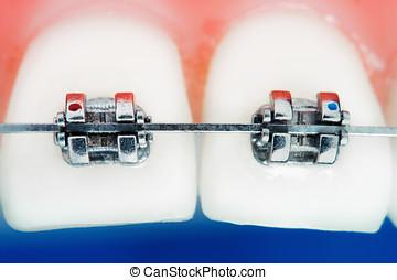 främre del, tänder, hängslen, toppen, makro, ytlig, skärpedjup