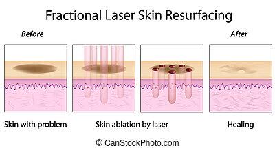 fractional, 皮膚, resurfacing, eps10
