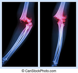 Fracture elbow (Left image : side position , Right image : front position)