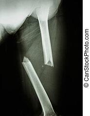 fracture femur