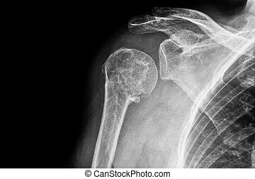Fractured upper arm - X-ray of a fractured upper arm