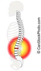 framfall, ryggrads, skiva, herniation