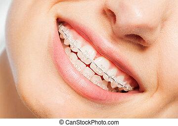 frau, dental, junger, lächeln, hosenträger, glücklich