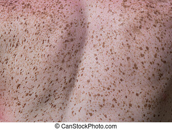 Freckles on body - Close up of freckles on back of woman. ...