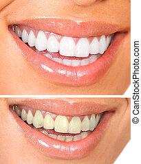 friska tänder