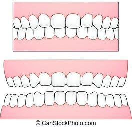 frontale, illustrazione medica, gomme, depictions, vettore, prospettiva, denti, bianco, dentale