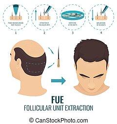 fue, perte cheveux, traitement