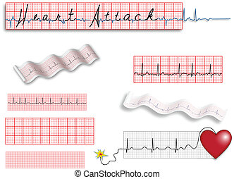 Full page EKG strips with Heart Att - Use to illustrate ...
