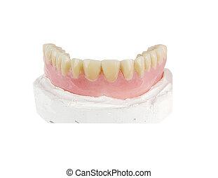 full upper denture on a model