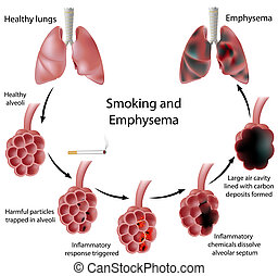 fumar, e, enfisema, eps8