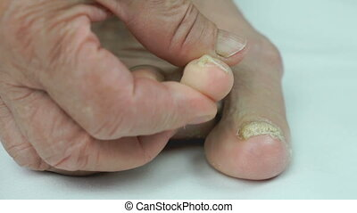 Onychomycosis. Fungal infection of nails of old grandmother's feet close-up