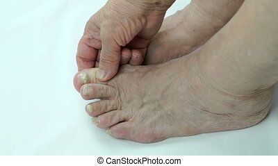 Serious fungal infection on nails of person's foot