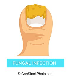 Fungal infection toenail damage suppuration toe vector