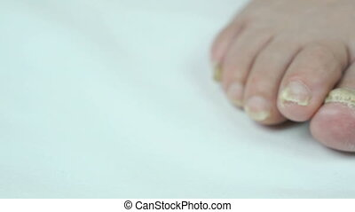 Fungal infections of feet of old woman close-up