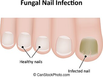 Fungal Nail Infection Labeled