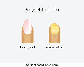 fungal, prego, infecção