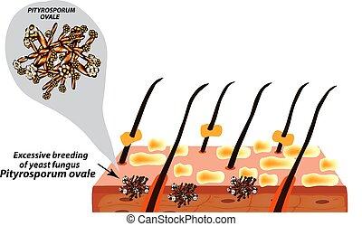 Fungal yeast pathogen seborrhea Pityrosporum ovale...