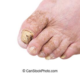 fungo, pé, pregos, infecção, homem