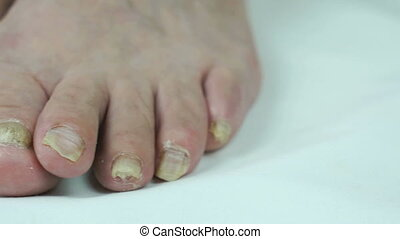 Fungus infection nails of person's foot close-up