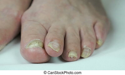 Fungus infection on toenails of female's foot close-up