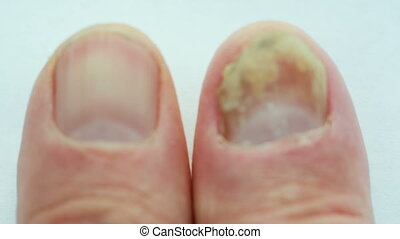 Fungus on the nail - An aggressive fungus on the finger nail