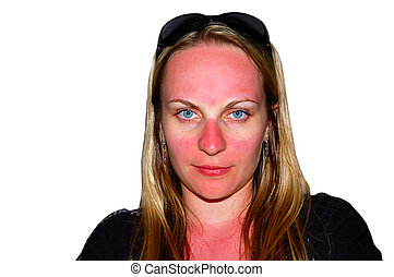 Funny looking sunburns on a girl's face that was not covered by sun glasses. Isolated, over white.