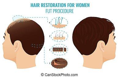 fut, perda cabelo, tratamento